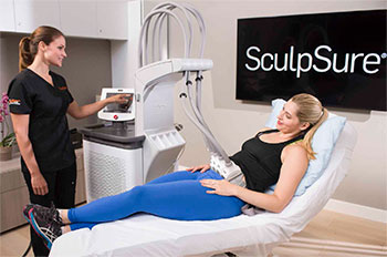 SculpSure laser treatment